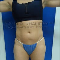 Abdominal Liposuction Gallery - Patient 3717886 - Image 1