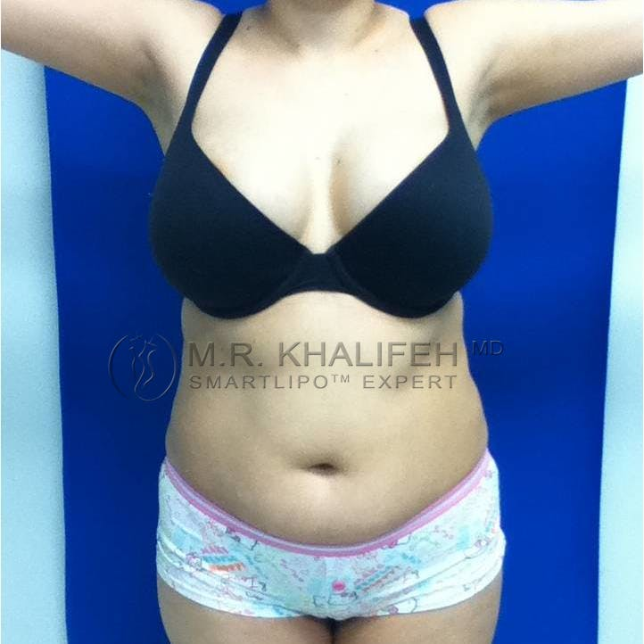 Abdominal Liposuction Gallery - Patient 3717935 - Image 1