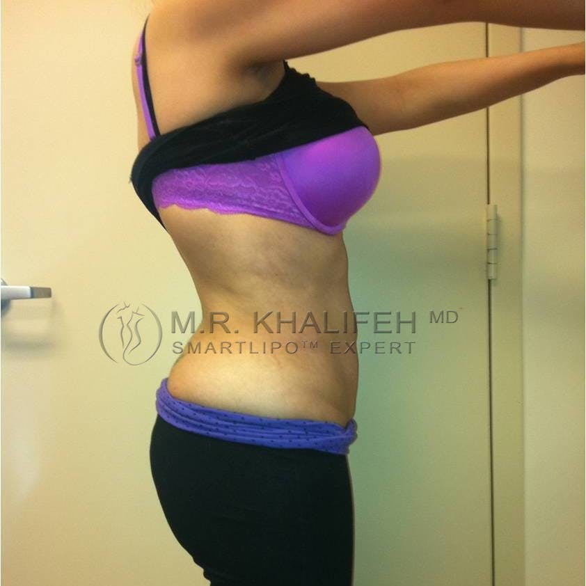 Abdominal Liposuction Gallery - Patient 3717935 - Image 4