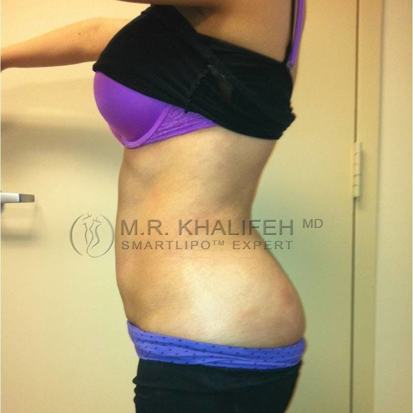 Abdominal Liposuction Gallery - Patient 3717935 - Image 6