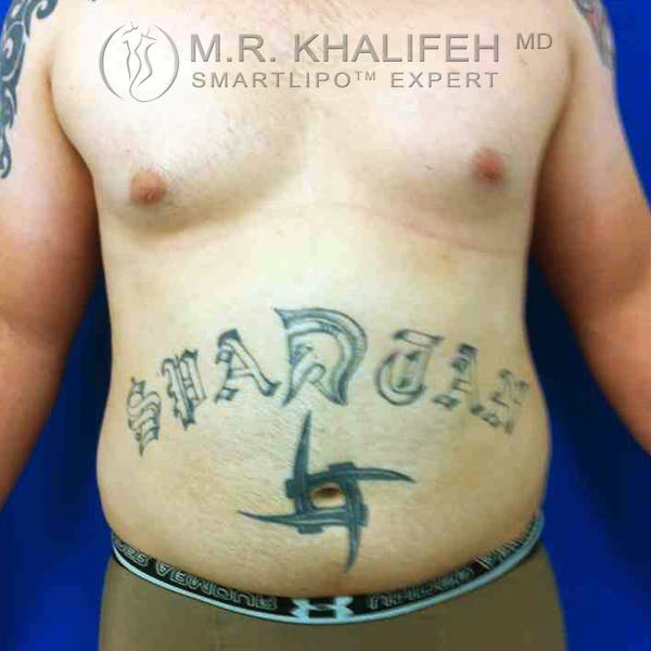 Abdominal Liposuction Gallery - Patient 3718225 - Image 1