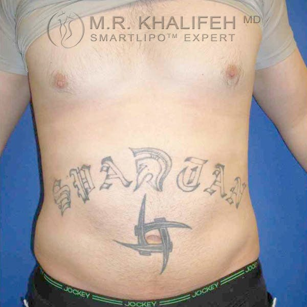 Abdominal Liposuction Gallery - Patient 3718225 - Image 2