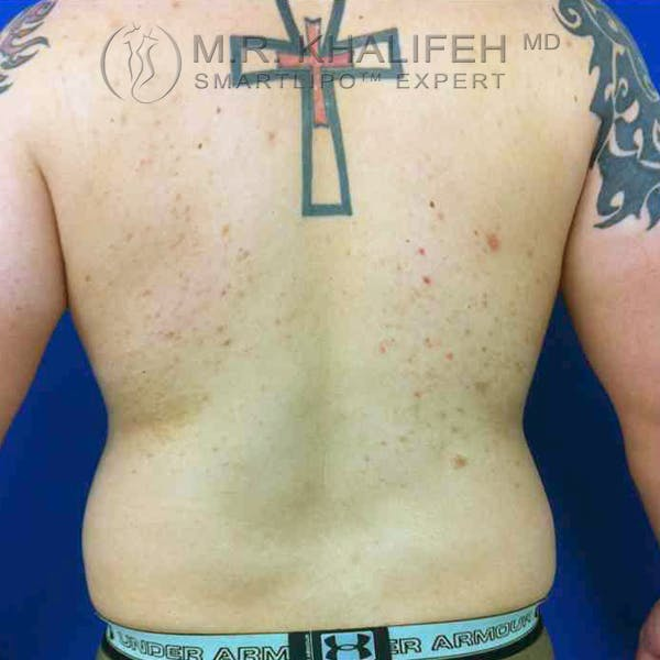 Abdominal Liposuction Gallery - Patient 3718225 - Image 5