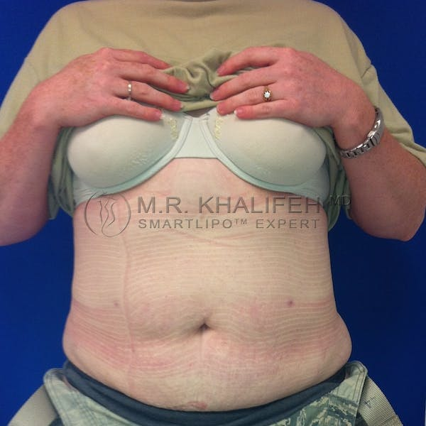 Abdominal Liposuction Gallery - Patient 3718291 - Image 2