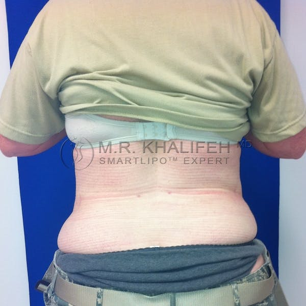 Abdominal Liposuction Gallery - Patient 3718291 - Image 6