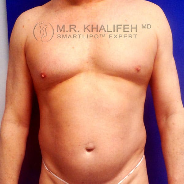 Abdominal Liposuction Gallery - Patient 3718359 - Image 1