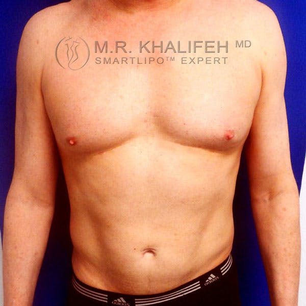 Abdominal Liposuction Gallery - Patient 3718359 - Image 2
