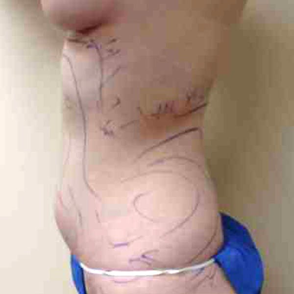 Flank-Lower Back Liposuction Gallery - Patient 3718543 - Image 1