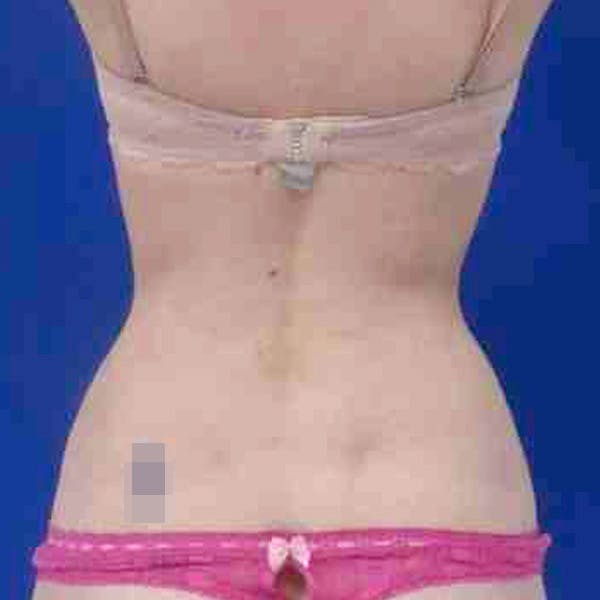 Flank-Lower Back Liposuction Gallery - Patient 3718543 - Image 6