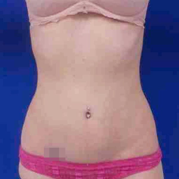 Flank-Lower Back Liposuction Gallery - Patient 3718543 - Image 8