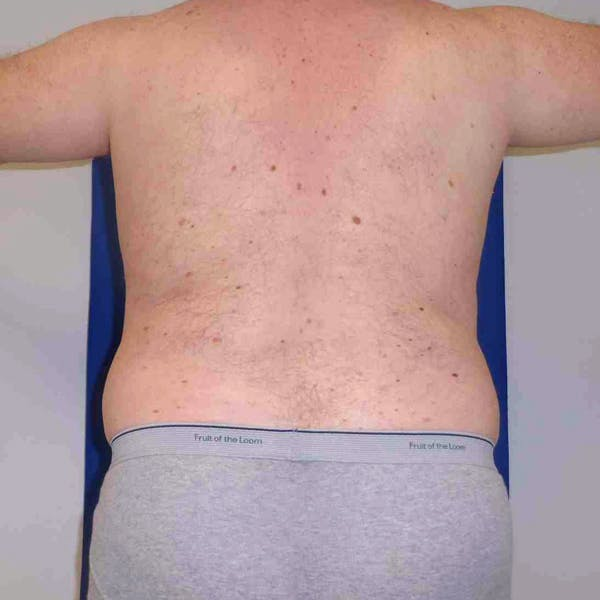 Flank-Lower Back Liposuction Gallery - Patient 3718600 - Image 1