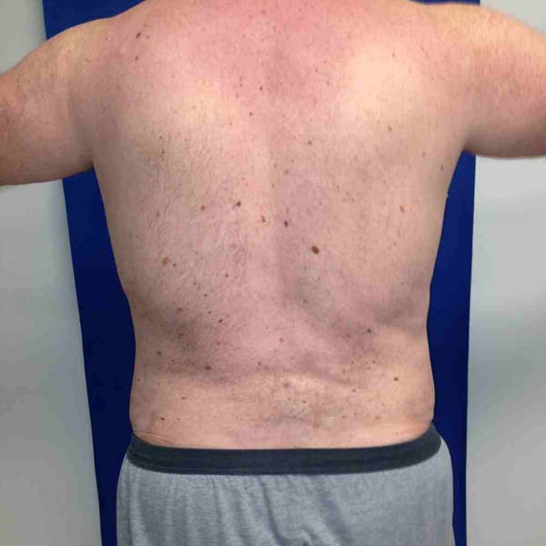Flank-Lower Back Liposuction Gallery - Patient 3718600 - Image 2