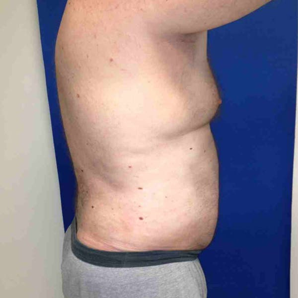 Flank-Lower Back Liposuction Gallery - Patient 3718600 - Image 6