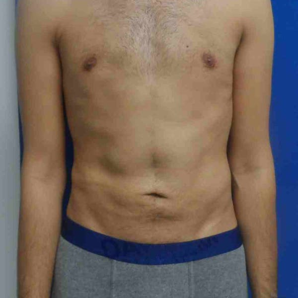 Flank-Lower Back Liposuction Gallery - Patient 3718656 - Image 2