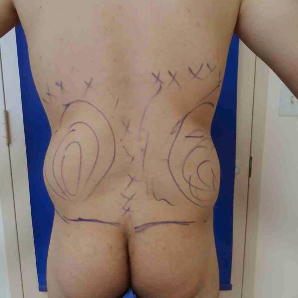 Flank-Lower Back Liposuction Gallery - Patient 3718656 - Image 3