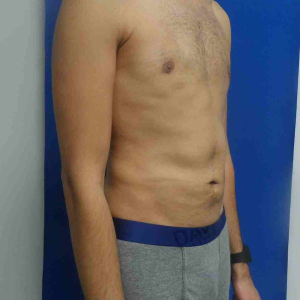 Flank-Lower Back Liposuction Gallery - Patient 3718656 - Image 6