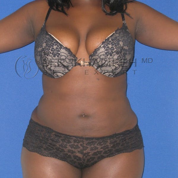 Flank-Lower Back Liposuction Gallery - Patient 3718726 - Image 2