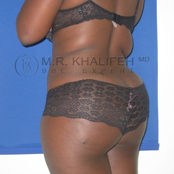 Flank-Lower Back Liposuction Gallery - Patient 3718726 - Image 10