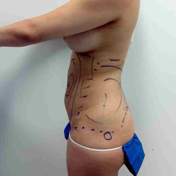 Flank-Lower Back Liposuction Gallery - Patient 3718763 - Image 1