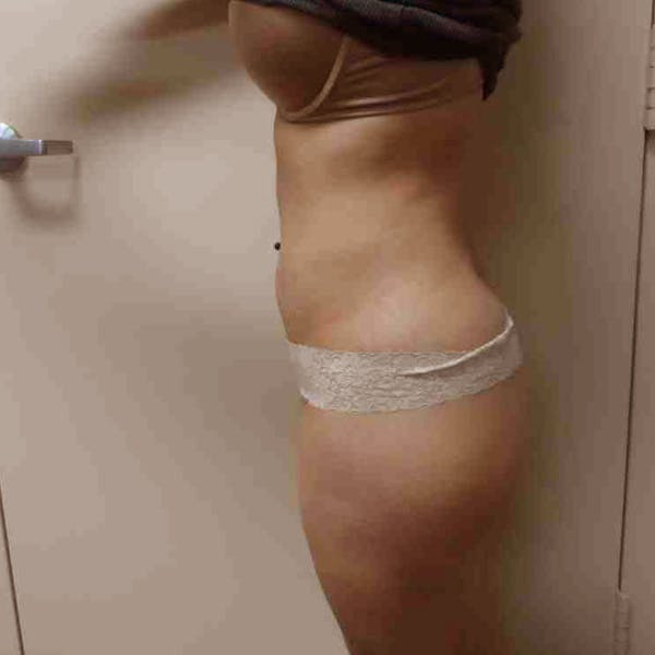Flank-Lower Back Liposuction Gallery - Patient 3718763 - Image 2