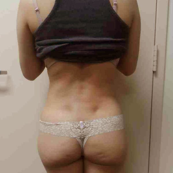 Flank-Lower Back Liposuction Gallery - Patient 3718763 - Image 4