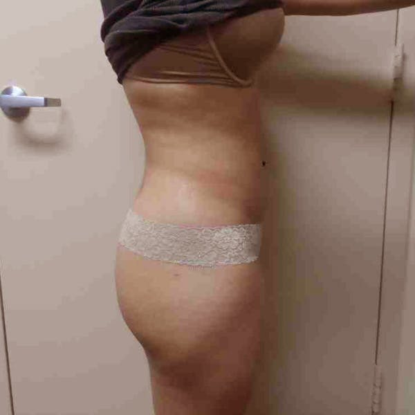Flank-Lower Back Liposuction Gallery - Patient 3718763 - Image 6