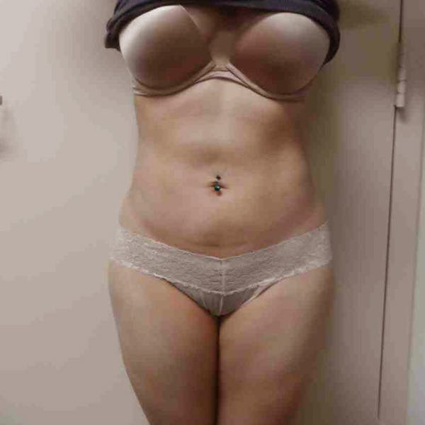Flank-Lower Back Liposuction Gallery - Patient 3718763 - Image 8