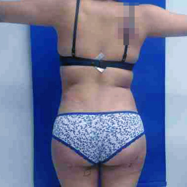 Flank-Lower Back Liposuction Gallery - Patient 3718807 - Image 4