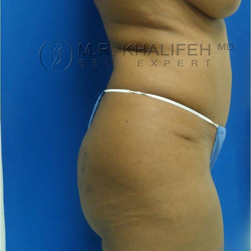 Flank-Lower Back Liposuction Gallery - Patient 3718843 - Image 1