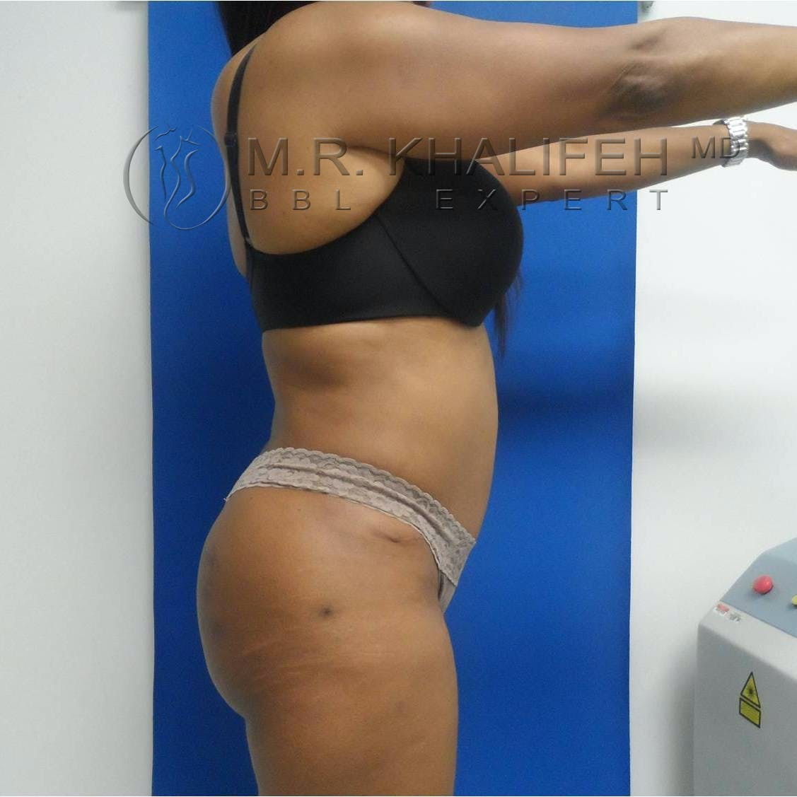 Flank-Lower Back Liposuction Gallery - Patient 3718843 - Image 2