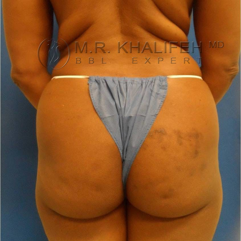 Flank-Lower Back Liposuction Gallery - Patient 3718843 - Image 3