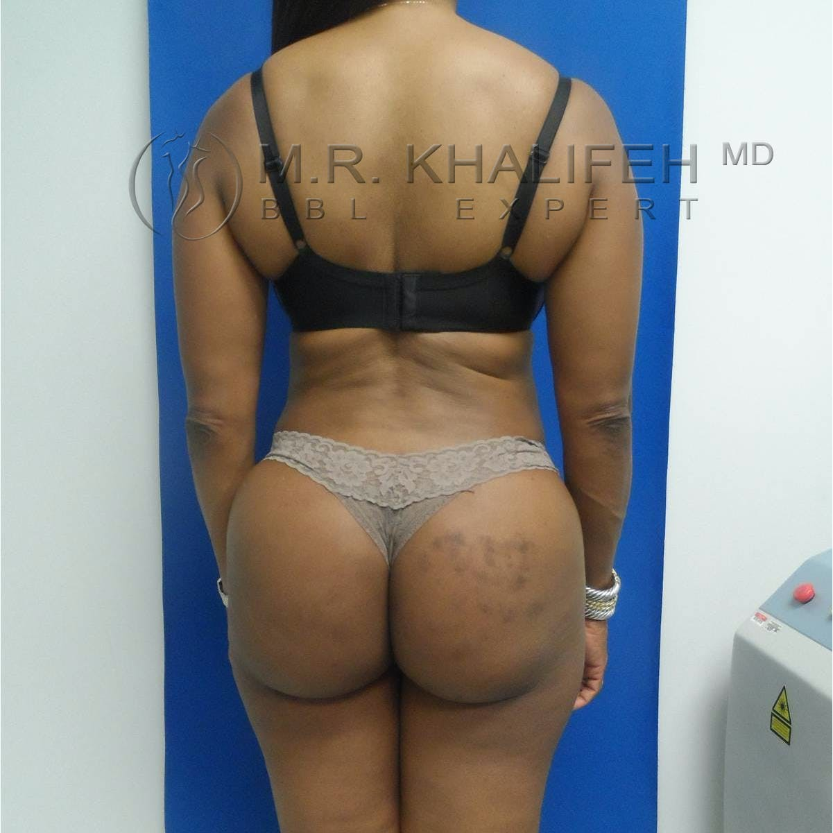 Flank-Lower Back Liposuction Gallery - Patient 3718843 - Image 4