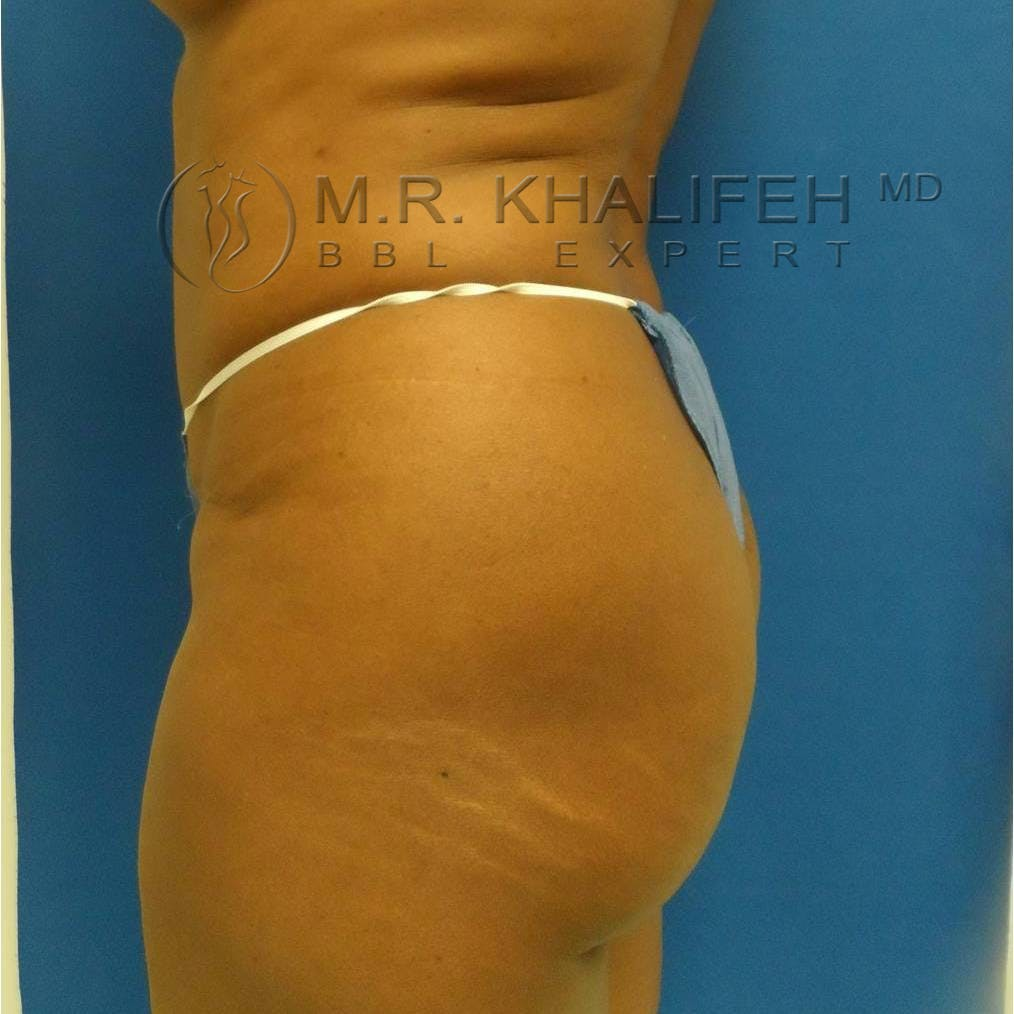 Flank-Lower Back Liposuction Gallery - Patient 3718843 - Image 5