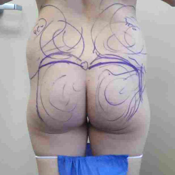 Flank-Lower Back Liposuction Gallery - Patient 3718871 - Image 3