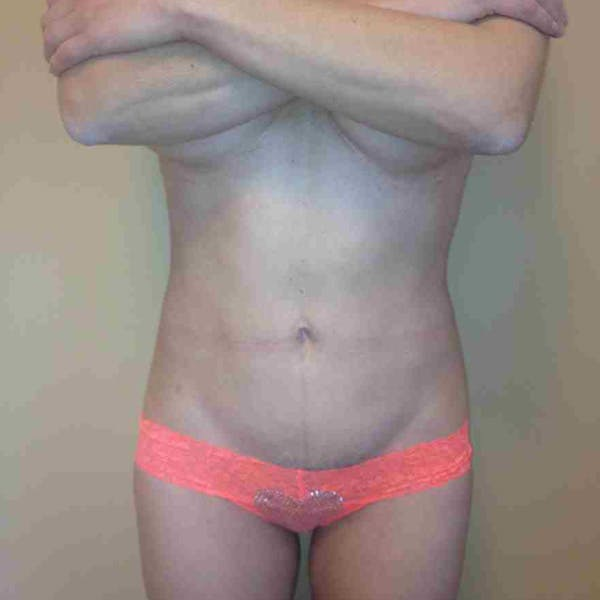 Flank-Lower Back Liposuction Gallery - Patient 3718871 - Image 6