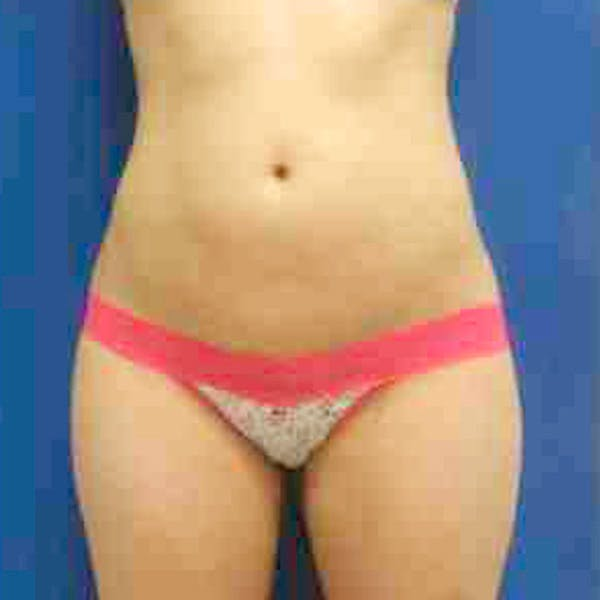 Flank-Lower Back Liposuction Gallery - Patient 3718915 - Image 2