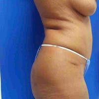 Flank-Lower Back Liposuction Gallery - Patient 3718940 - Image 1