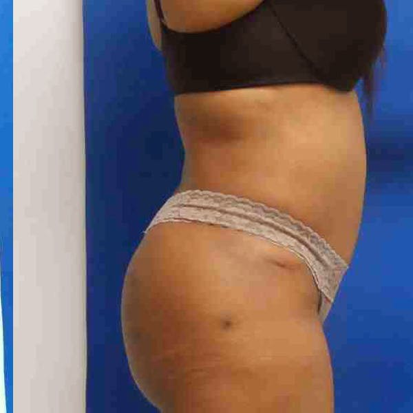 Flank-Lower Back Liposuction Gallery - Patient 3718940 - Image 2