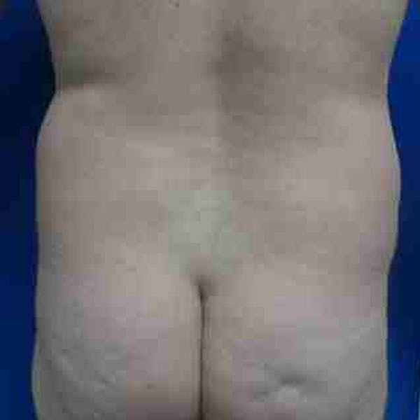 Flank-Lower Back Liposuction Gallery - Patient 3718960 - Image 1