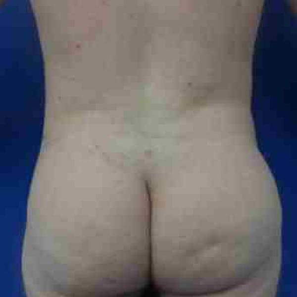 Flank-Lower Back Liposuction Gallery - Patient 3718960 - Image 2