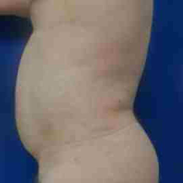 Flank-Lower Back Liposuction Gallery - Patient 3718960 - Image 4