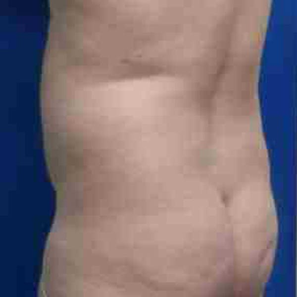 Flank-Lower Back Liposuction Gallery - Patient 3718960 - Image 5