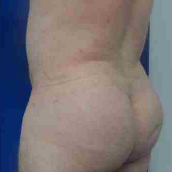 Flank-Lower Back Liposuction Gallery - Patient 3718960 - Image 6