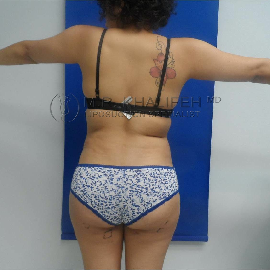 Flank-Lower Back Liposuction Gallery - Patient 3719001 - Image 4