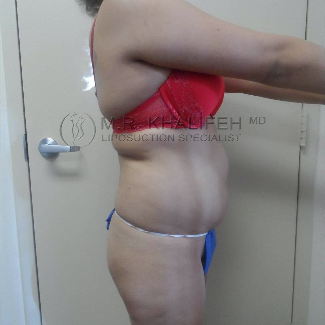 Flank-Lower Back Liposuction Gallery - Patient 3719001 - Image 5