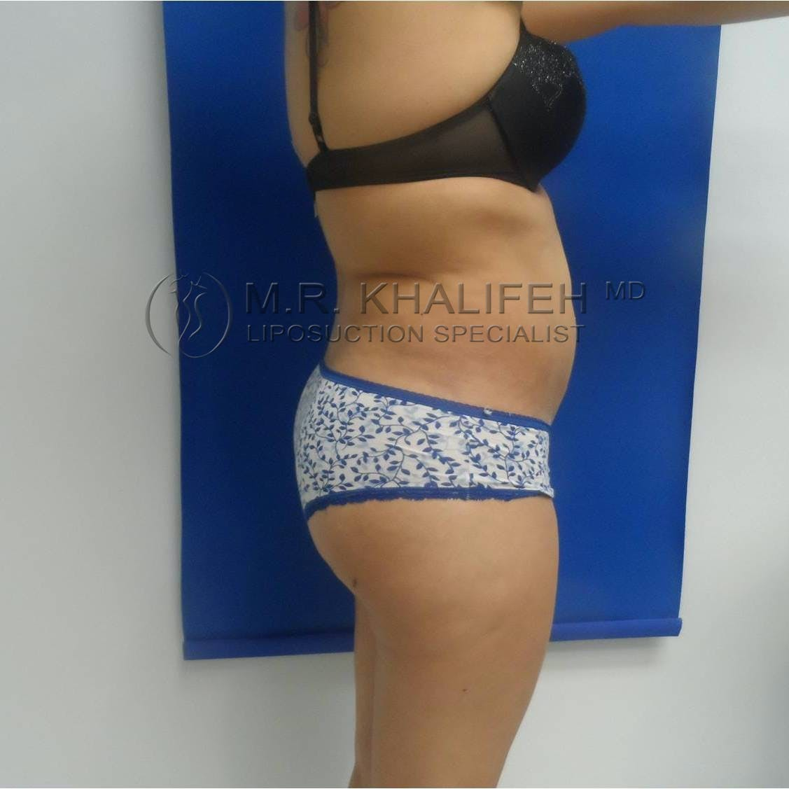 Flank-Lower Back Liposuction Gallery - Patient 3719001 - Image 6