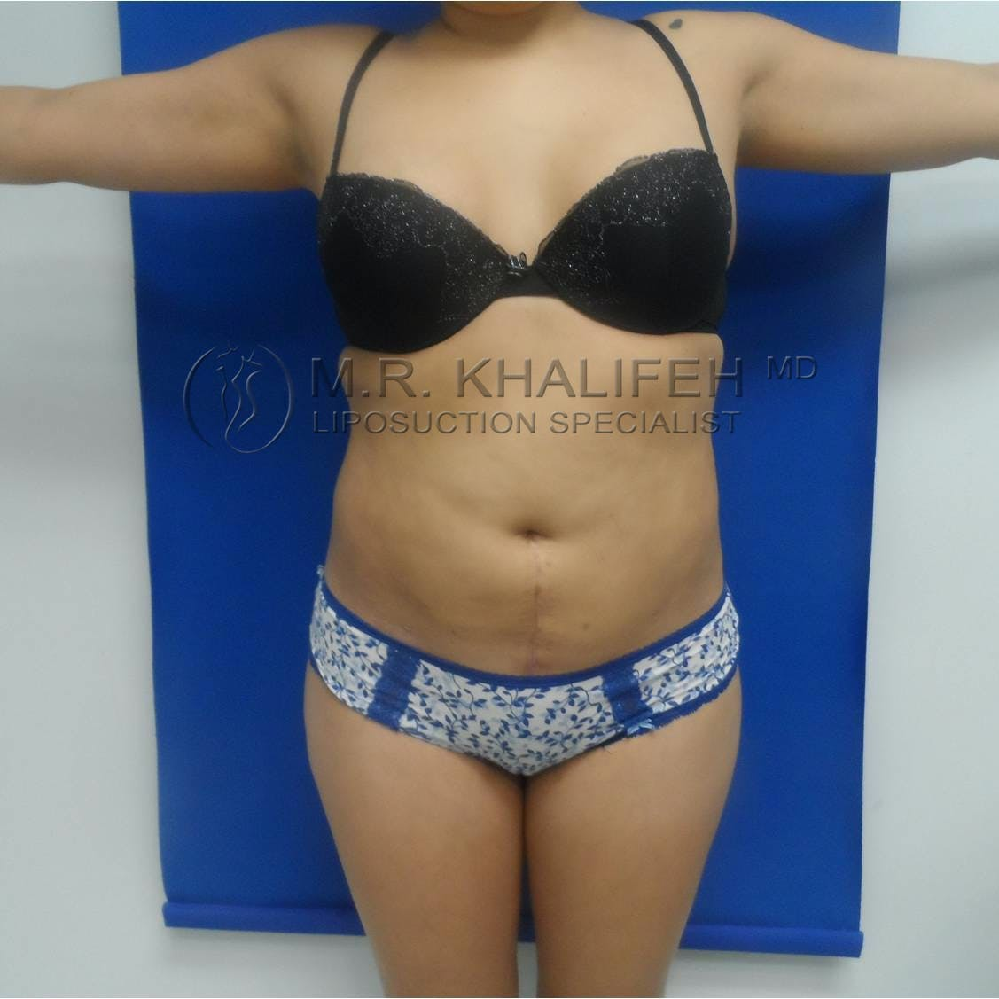 Flank-Lower Back Liposuction Gallery - Patient 3719001 - Image 8