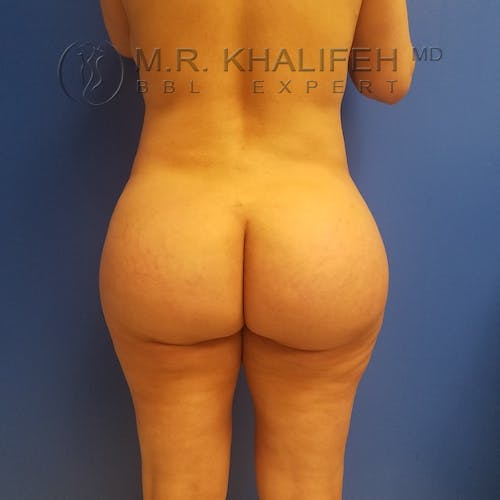 Flank-Lower Back Liposuction Gallery - Patient 3719056 - Image 2