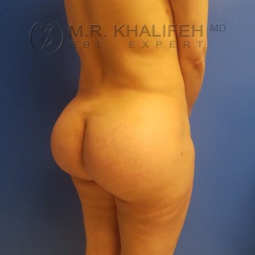 Flank-Lower Back Liposuction Gallery - Patient 3719056 - Image 7