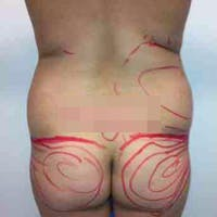 Flank-Lower Back Liposuction Gallery - Patient 3719130 - Image 1